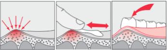 начин на поставяне на протект гела