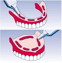 начин на поставяне на фиксиращия крем